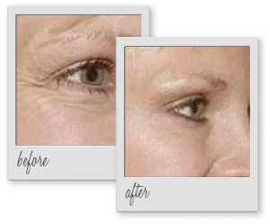 botox-wrinkles-before-after-aesthetics-med-spa-houston-img-01