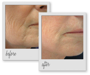 laser_skin_tightening_before_after_aesthetics_med_spa_houston_img_02